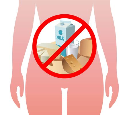 A medical illustration of lactose intolerance with the products which cause this allergy. Illustration
