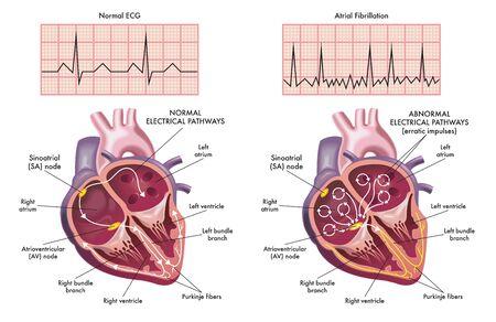 Medizinische Illustration, die die Symptome eines Herzens mit Vorhofflimmern im Vergleich zu einem normalen zeigt.