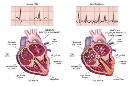 Medical illustration showing the symptoms of a heart with atrial fibrillation compared to normal one.