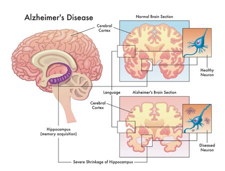 Medical illustration of Alzheimer`s disease isolated on white. Vettoriali