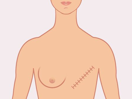 Female human form illustrated with the scars of a mastectomy. Illustration