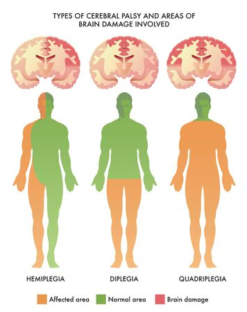 Medical illustration of types of cerebral palsy and areas of brain damage involved. Illustration