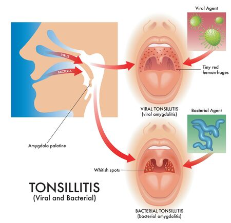 Medical illustration of the symptoms of viral and bacterial tonsillitis, also called viral amygdalitis and bacterial amygdalitis, with the pathogens that cause the infection. Illustration