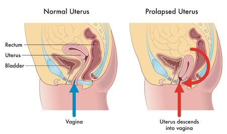 Medical illustration showing the difference between a normal uterus and a prolapsed uterus with annotations explaining how this occurs.