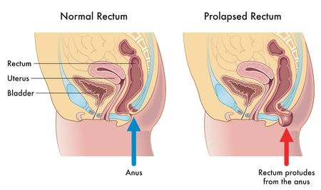 Medical illustration showing the difference between a normal rectum and a prolapsed rectum, with annotations explaining how this occurs.