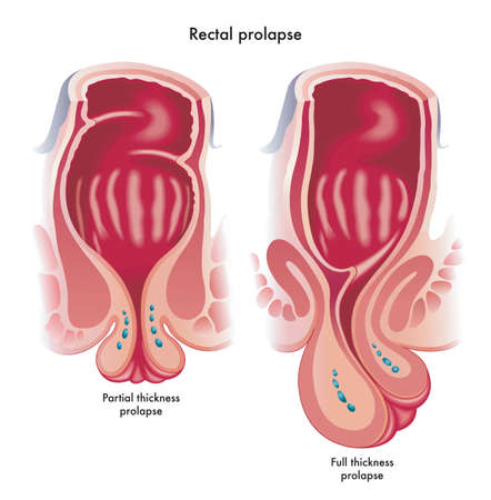 Medical illustration showing two types of rectal prolapse, a partial thickness prolapse, and a full thickness prolapsed.