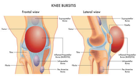 Medical illustration of a knee with an inflamed prepatellar bursa (BURSITIS) viewed frontally and laterally, with annotations.