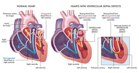 Medical illustration that compares a normal heart with hearts afflicted by ventricular septal defects, an abnormal opening (hole) in the heart, with annotations. Illustration