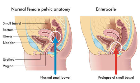Medical illustration shows the female pelvic anatomy, one with normal small bowel, compared with one with prolapse of small bowel called Enterocele.