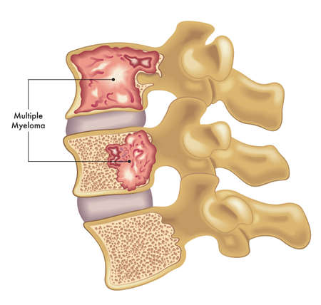 Medical illustration of two vertebrae of the spine affected by multiple myeloma.