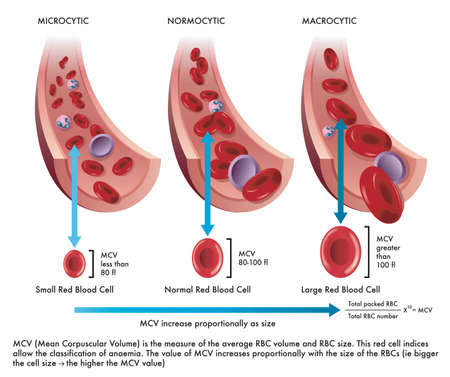Medical illustration shows the difference between a normal red blood cell with one afflicted from microcytosis and another from macrocytosis