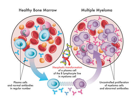 Medical illustration shows the transformation of plasma cells in healthy bone marrow into myeloma cells in multiple myeloma, due to DNA damage. Illustration