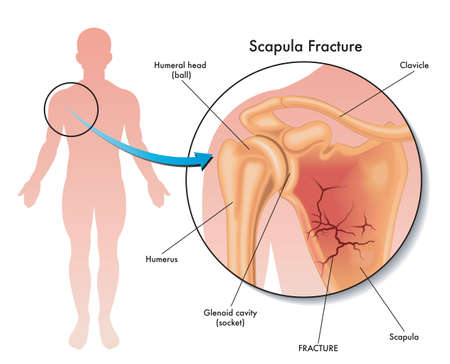 Medical illustration of a scapula fracture and its location in the human body, with annotations. Vettoriali