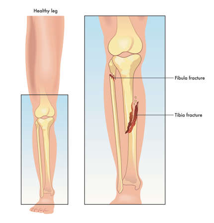 Medical illustration comparing a healthy leg to one with a fractured tibia and fibula.