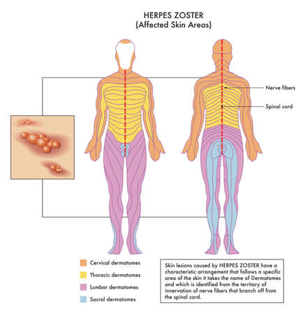 Medical diagram of affected skin areas of Herpes Zoster with annotations. Stock Illustratie