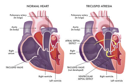 Medical illustration that appear a normal heart with a heart affected by cardiac defect called Tricuspid Atresia, with annotations.