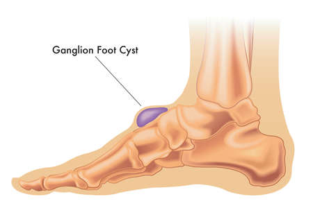Illustration of a ganglion cyst on the foot with annotation.