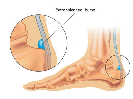 Illustration showing the position of the retrocalcaneal bursa in the foot, with an enlarged detail, and annotation. Illustration