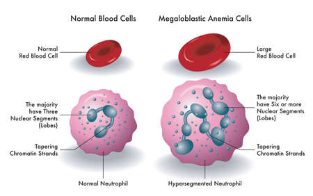 Medical illustration shows the difference between normal blood cells and megaloblastic anemia cells.