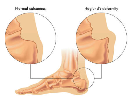 Medical illustration shows the comparison between a normal calcaneus and one affected by Haglund's deformity, with annotations. Stock Illustratie