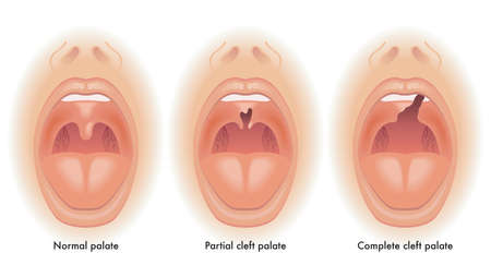 Medical illustration shows the difference between a normal palate, a partial cleft palate, and a complete cleft palate, with annotations.