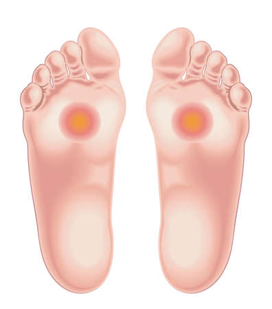 Illustration shows the feet area afflicted by the pain caused by metatarsalgia. Illustration