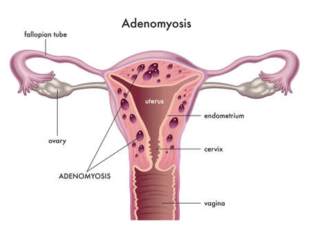 Anatomical illustration of the female reproductive system with the symptoms of adenomyosis, with annotations.