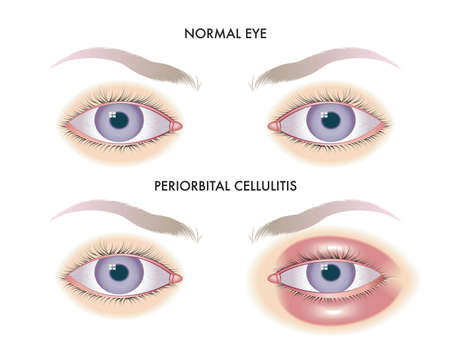 Medical illustration shows the comparison between normal eyes and those affected by periorbital cellulitis.