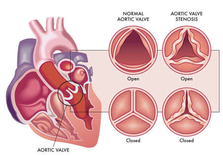 Medical illustration shows the difference between a normal aortic valve and one with stenosis, open and closed, and its location in the heart, with annotations. Vektorgrafik