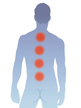 Illustration shows the main areas of pain on the back of man, caused by multiple myeloma.