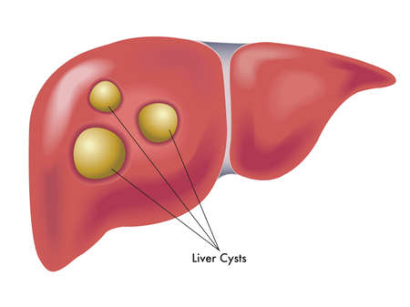Medical illustration shows a liver with various cysts.