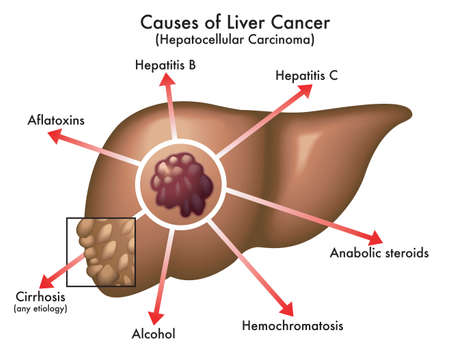 Medical illustration of the main causes of liver cancer, with annotations, on a white background.