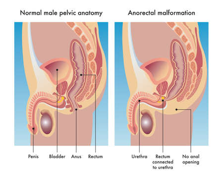 Medical illustration compares a normal male pelvic anatomy with one afflicted with anorectal malformation, with annotations.