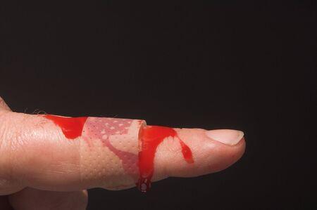 firstaid: A la hemorragia con un dedo de la mano sangrienta banda de ayuda.