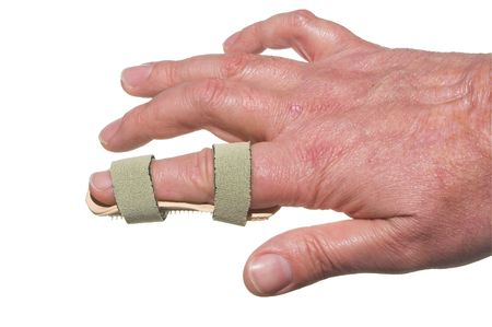 splint: A broken finger in a temporary splint.