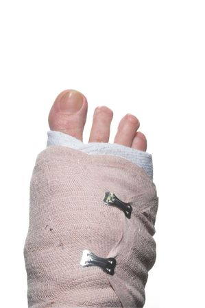 sprained: A broken foot wrapped up in a temporary bandage.