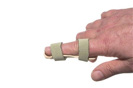 splint: Un roto en un dedo entablillado temporal.  Foto de archivo