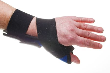 A stiff fabric brace for broken or sprained wrists. photo