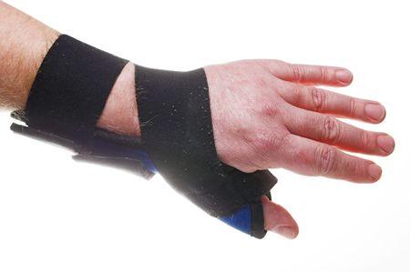 broken wrist: Un tejido r�gido cors� para roto o esguince de mu�eca.  Foto de archivo