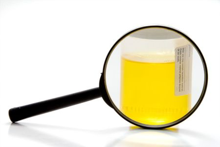 A fresh urine sample in a medical container. Stock Photo