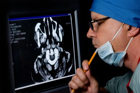 A medical doctor examining a CTT Scan. photo