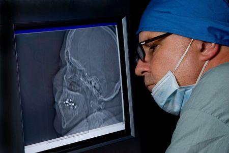 A medical doctor examining a CTT Scan.