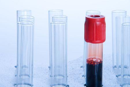 tubo de ensayo: Una muestra de sangre en un tubo de ensayo.