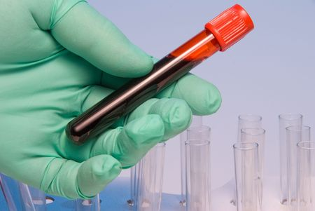 A scientist handling a blood sample in a test tube.