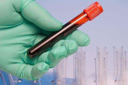 tubo de ensayo: Un cient�fico de la manipulaci�n de una muestra de sangre en un tubo de ensayo. Foto de archivo