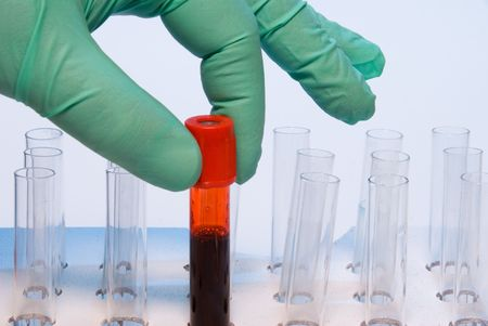 A researcher handling a blood sample in a test tube. photo