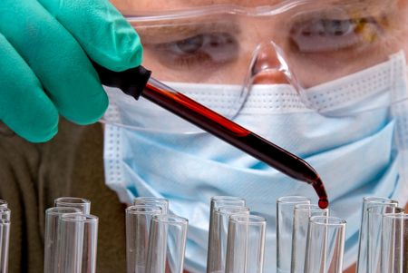 blood test: A medicine dropper dropping blood into a test tube. Stock Photo