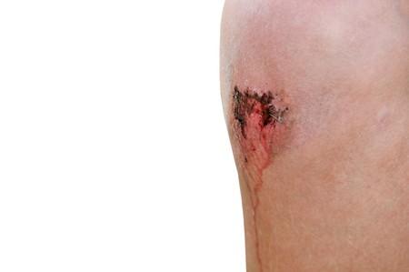 hemorragias: Un ni�o con un rasgu�o sangrienta en su rodilla