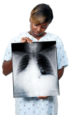 A beautiful woman black African American woman patient holding an x-ray Stock Photo - 8672323