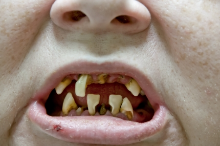 amalgam: Woman with severe dental oral tooth decay